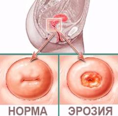 Лечение эрозии шейки матки с помощью аппарата СУРГИТРОН