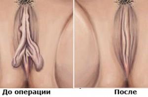 Пластическая операция половых губ
