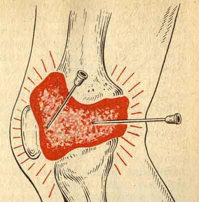 Пункция крупных суставов с введением лекарственного препарата