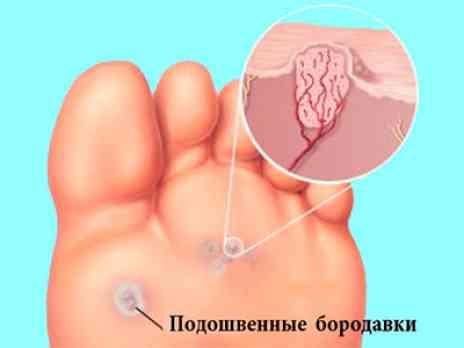 Хирургическое удаление подошвенных бородавок, омозолелостей