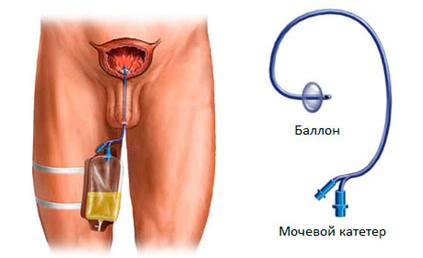Инстилляция мочевого пузыря у мужчин