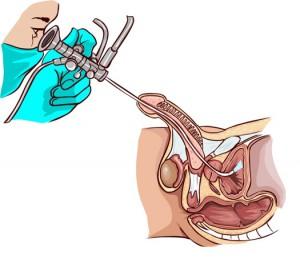 Инстилляция уретры