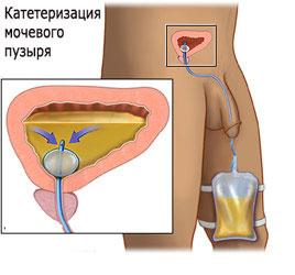 Катетеризация мочевого пузыря у мужчин (без стоимости катетера)