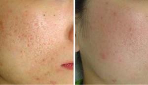 Лазерное лечение акне на лице