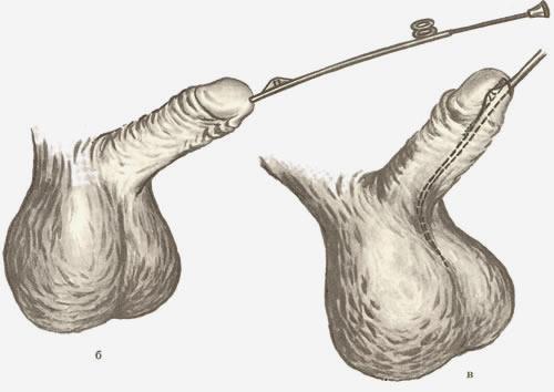 Меатотомия (рассечение наружного отверстия уретры лазером)
