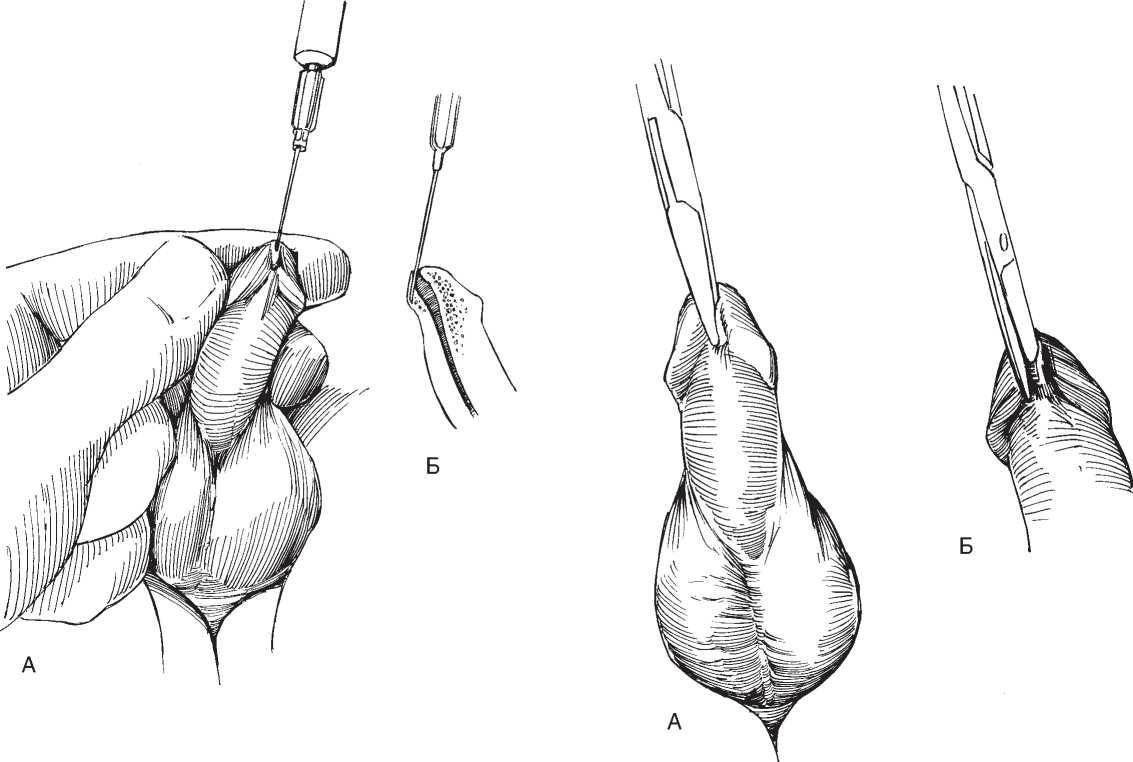 Меатотомия (рассечение наружного отверстия уретры ножом)