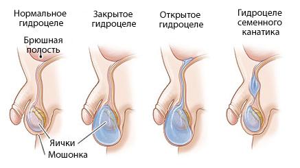 Операция по поводу водянки оболочек яичка: Винкельмана