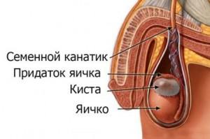 Операция удаления кисты яичка, придатка яичка, семенного канатика